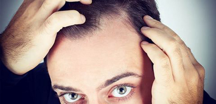 PRP Platelet Rich Plasma hair loss